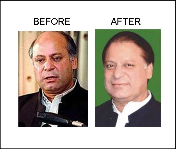 Nawaz Sharif Hair Transplant Before After